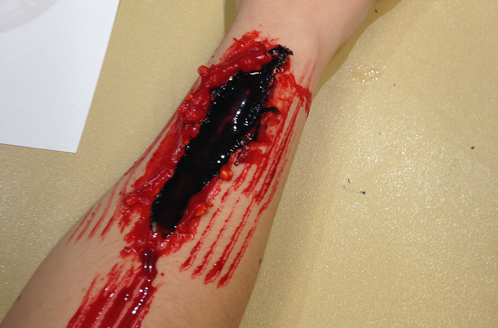Pouring stage blood on top of a wound makes the injury appear fresh.